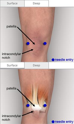 Arthrocentesis knee procedures consult japan figure 6 knee anatomy ccuart Choice Image