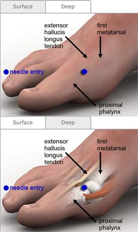 dose of steroids in gout