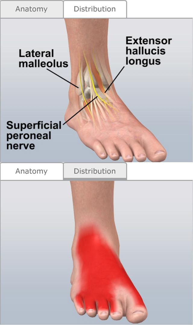 Common peroneal nerve release cpt code / Watch free online pretty
