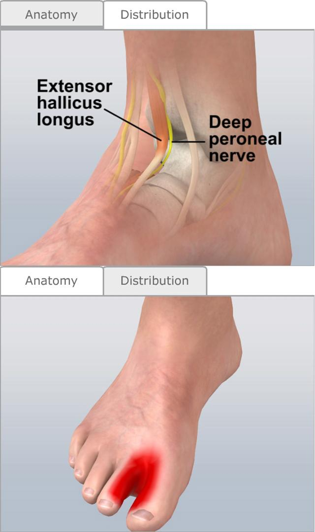 Nerve Blocks of the Lower Extremities - Procedures CONSULT JAPAN