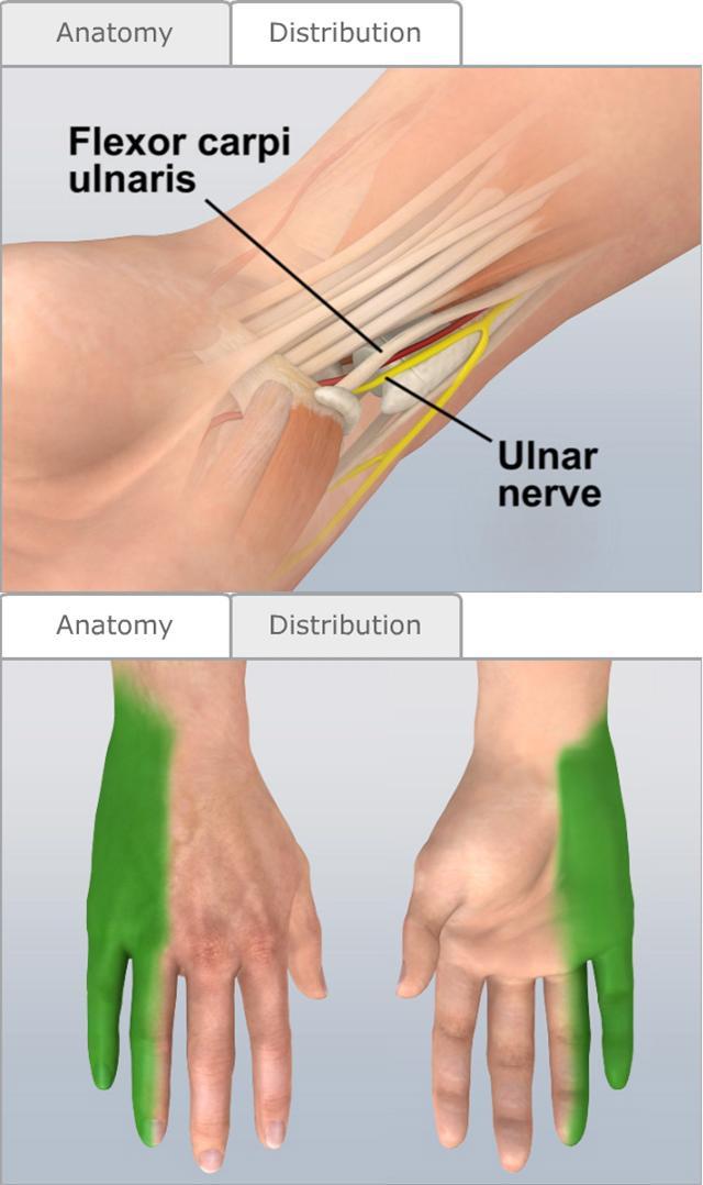 Photographs elbow nerve damage - 1aled.borzii