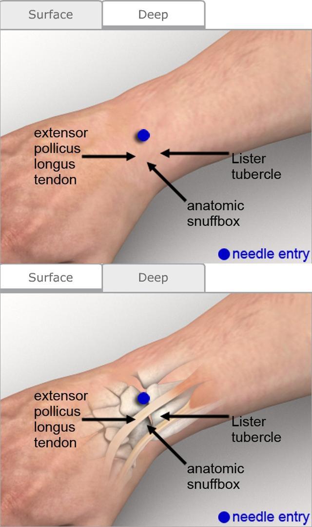Arthrocentesis Wrist Procedures Consult Japan